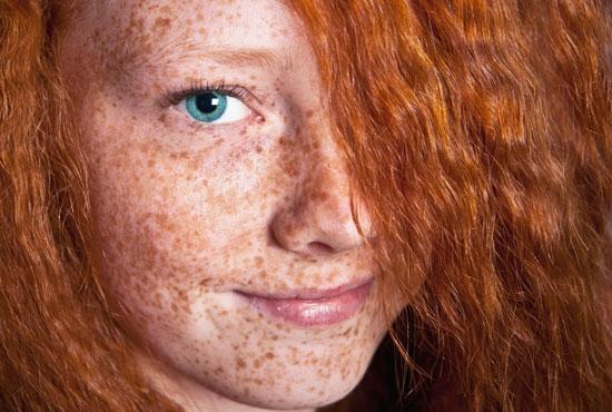 Lentiggini con occhi marroni